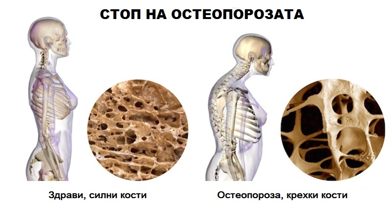 Stop Osteoporosis