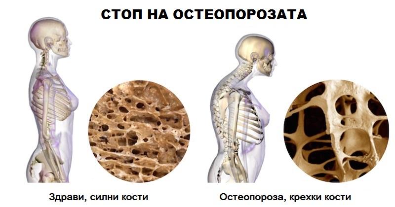 Стоп на остеопорозата